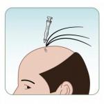 زراعة الشعر و عمليات التجميل في اسطنبول
